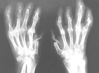 Боль В Плечевом Суставе Симптомы
